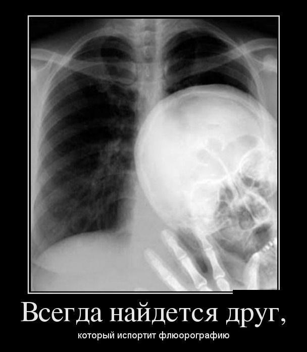 -1 Всегда есть тот, кто испортит любую фотографию)))
